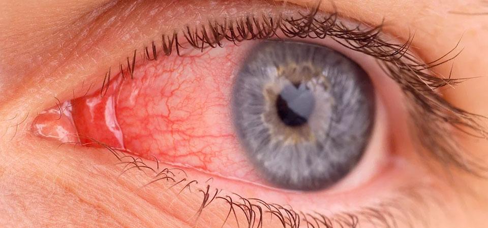 Демодекс глаз