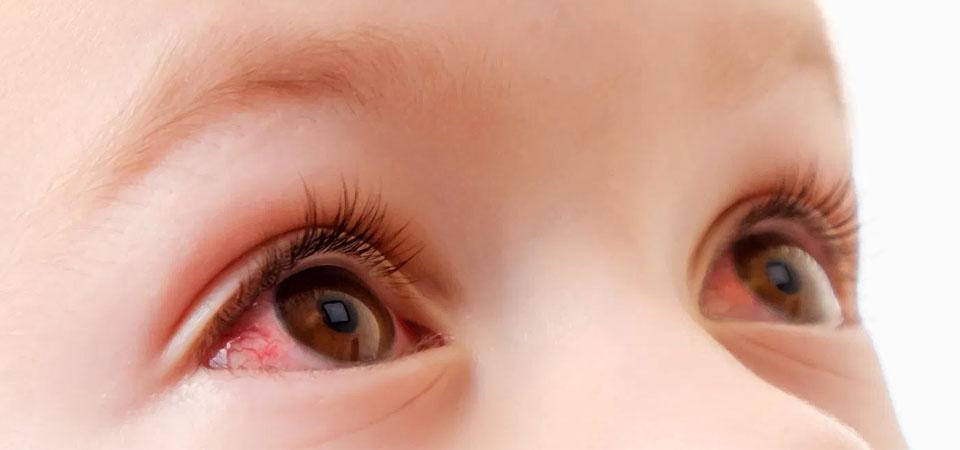 У ребёнка красные глаза