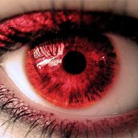 Раздражение глаз после линз